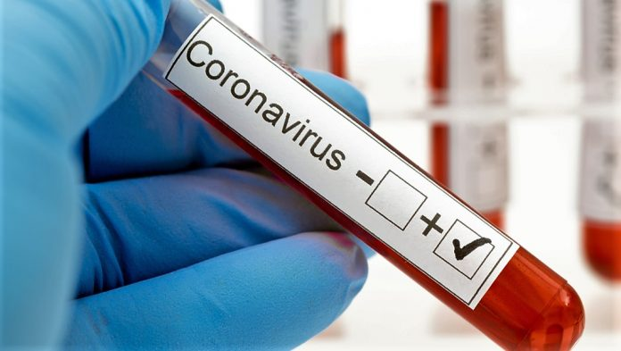 Penedo tem mais de 300 casos confirmados para o Covid-19 - Correio ...